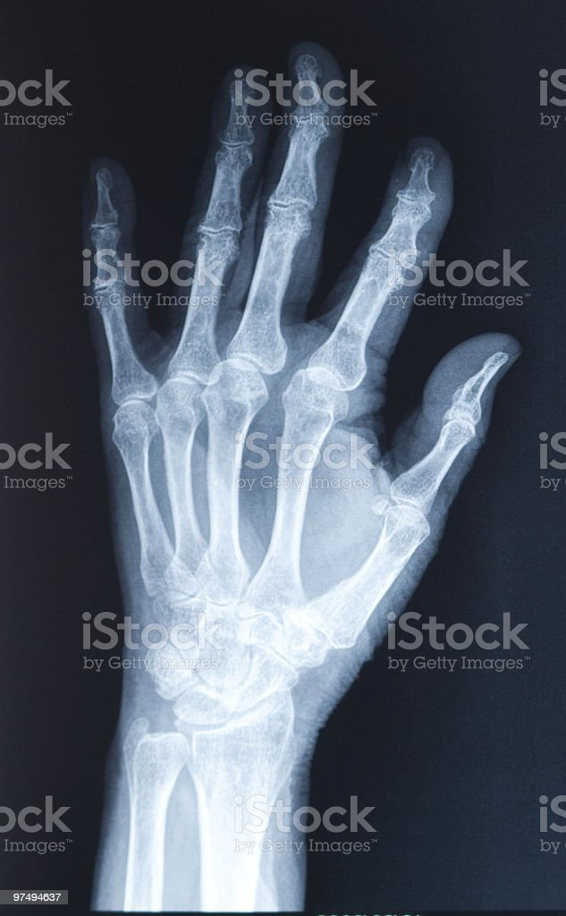 Broken Hand Xray Stock Photo More Pictures Of Anatomy Istock