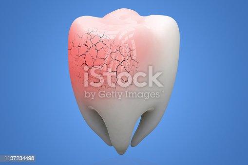 istock Broken human Tooth on blue background. 3d illustration 1137234498