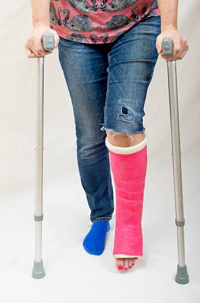 Broken Leg and Crutches stock photo