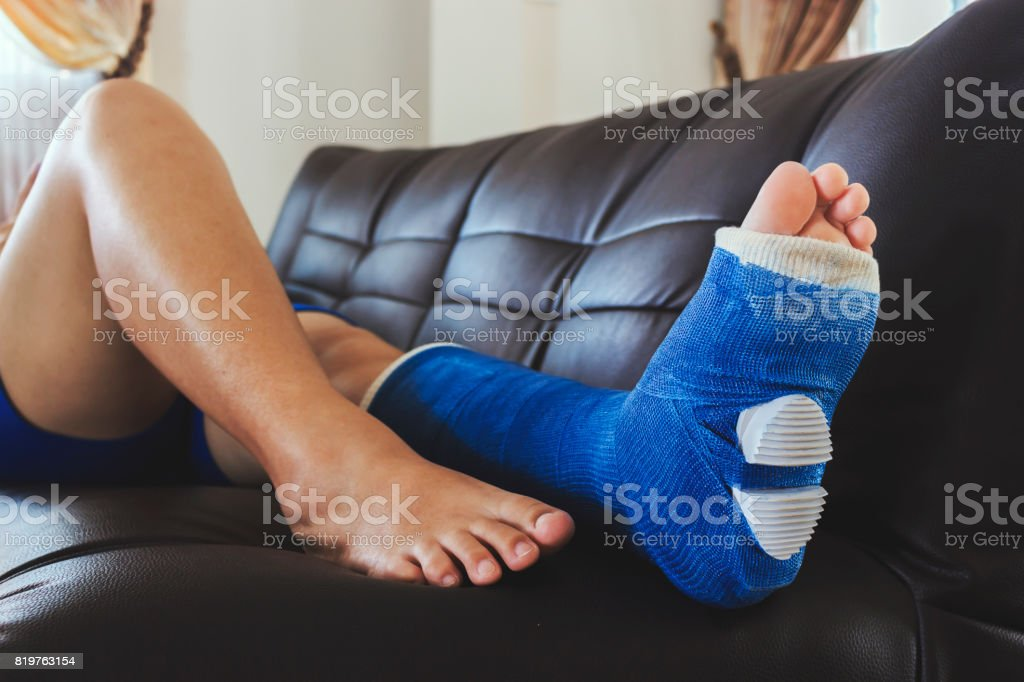 broken leg in a plaster cast with soft-focus in the background. over light stock photo