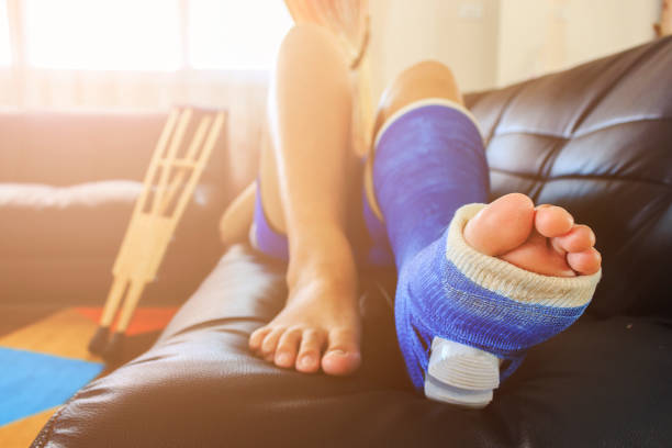 broken leg in a plaster cast with soft-focus in the background. over light - broken leg stock photos and pictures