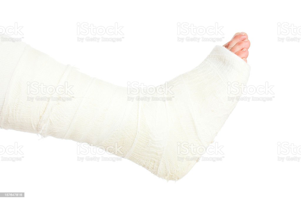 Broken Leg in Cast, Isolated on White stock photo