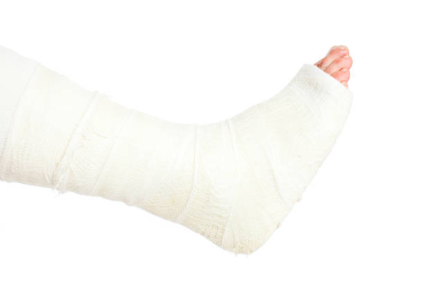 broken leg in cast, isolated on white - broken leg stock photos and pictures