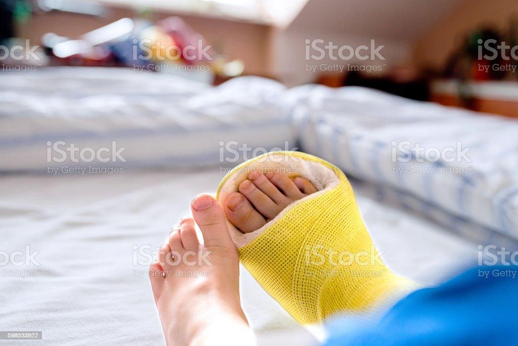Broken leg in cast of unrecognizable little boy. photo libre de droits