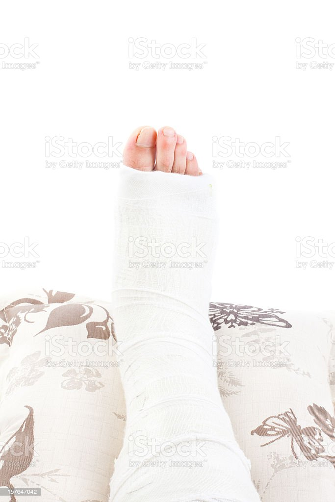 Broken Leg in Cast royalty-free stock photo