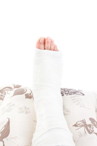 gebrochenes bein