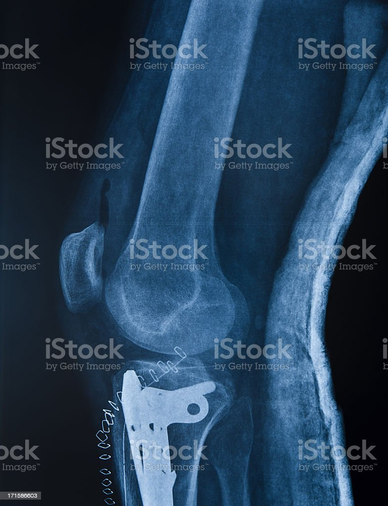 Broken leg stock photo
