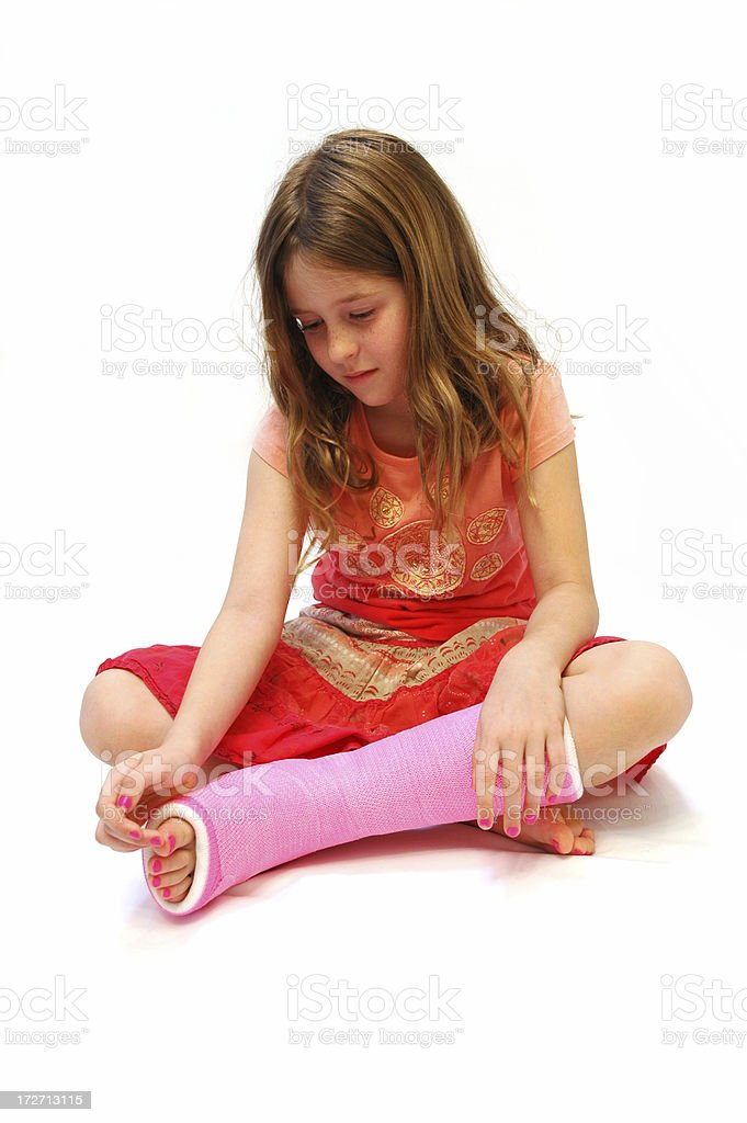 Broken leg. royalty-free stock photo