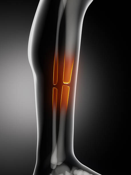 broken leg - janulla stock pictures, royalty-free photos & images