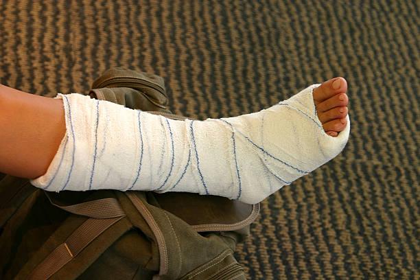 broken leg - broken leg stock photos and pictures