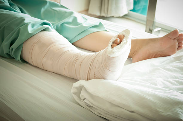broken leg - human limb stock pictures, royalty-free photos & images