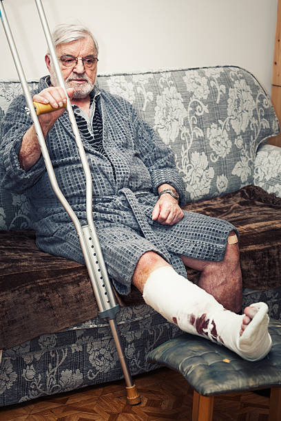broken leg - old man feet stock photos and pictures