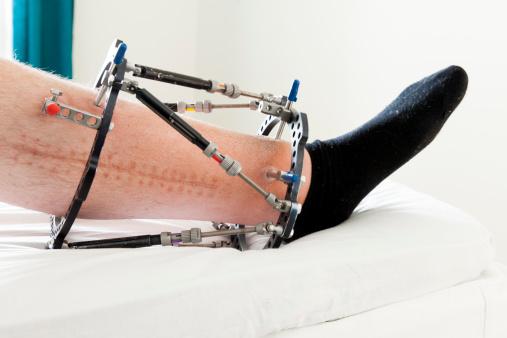 Broken Leg - Ringfixation  triple Fracture