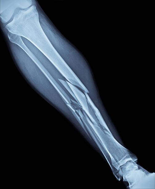 broken leg x-ray - broken leg stock photos and pictures
