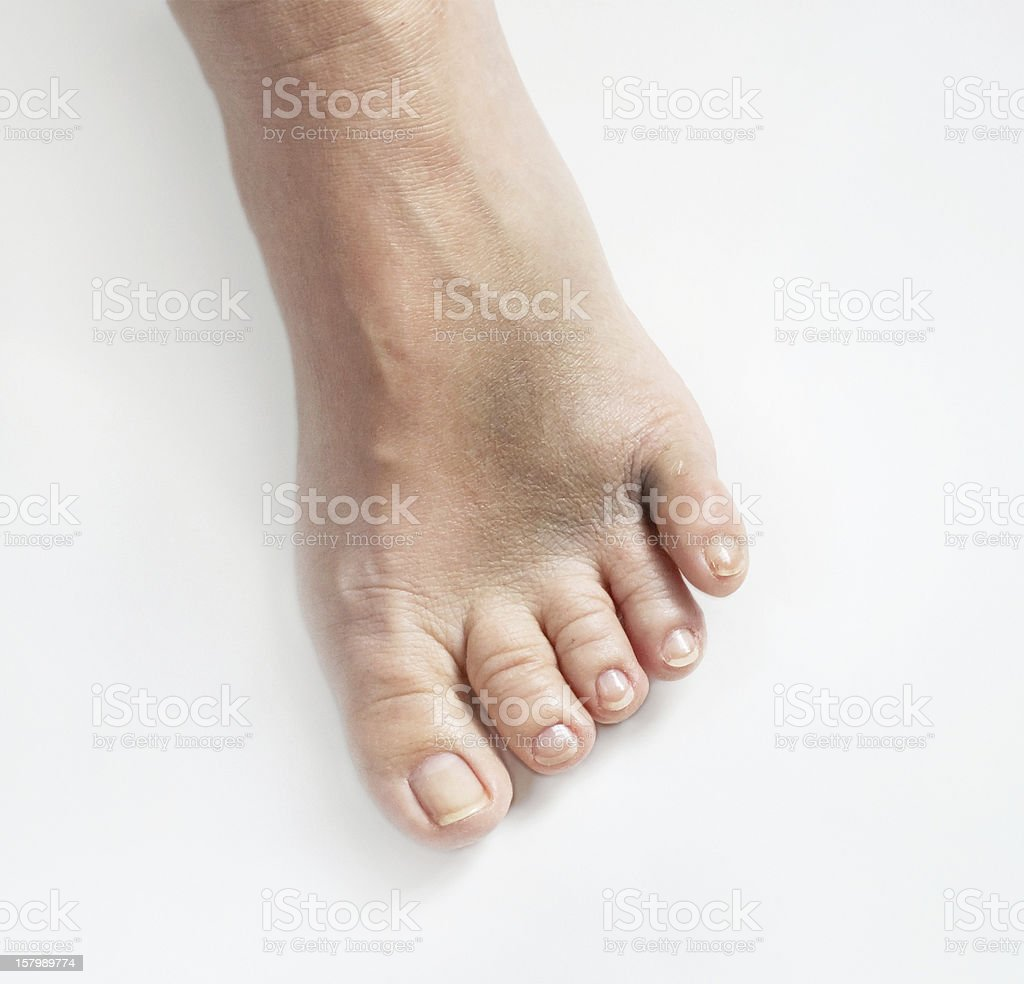 Broken Little Toe Stock Photo & More Pictures of Anatomy | iStock
