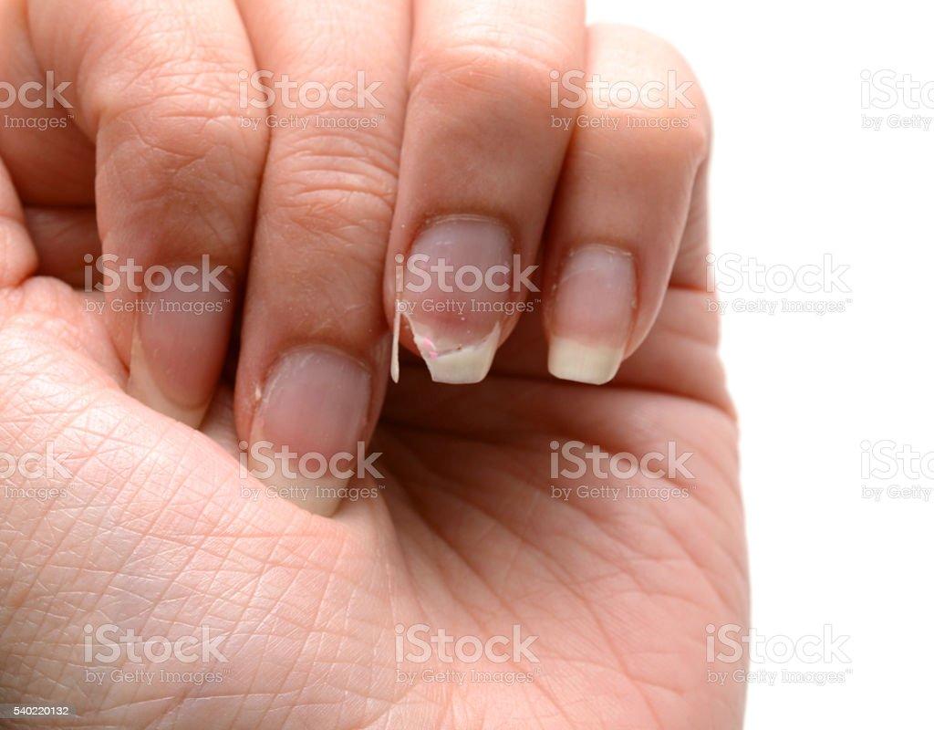 Broken Nail - Female Hand stock photo