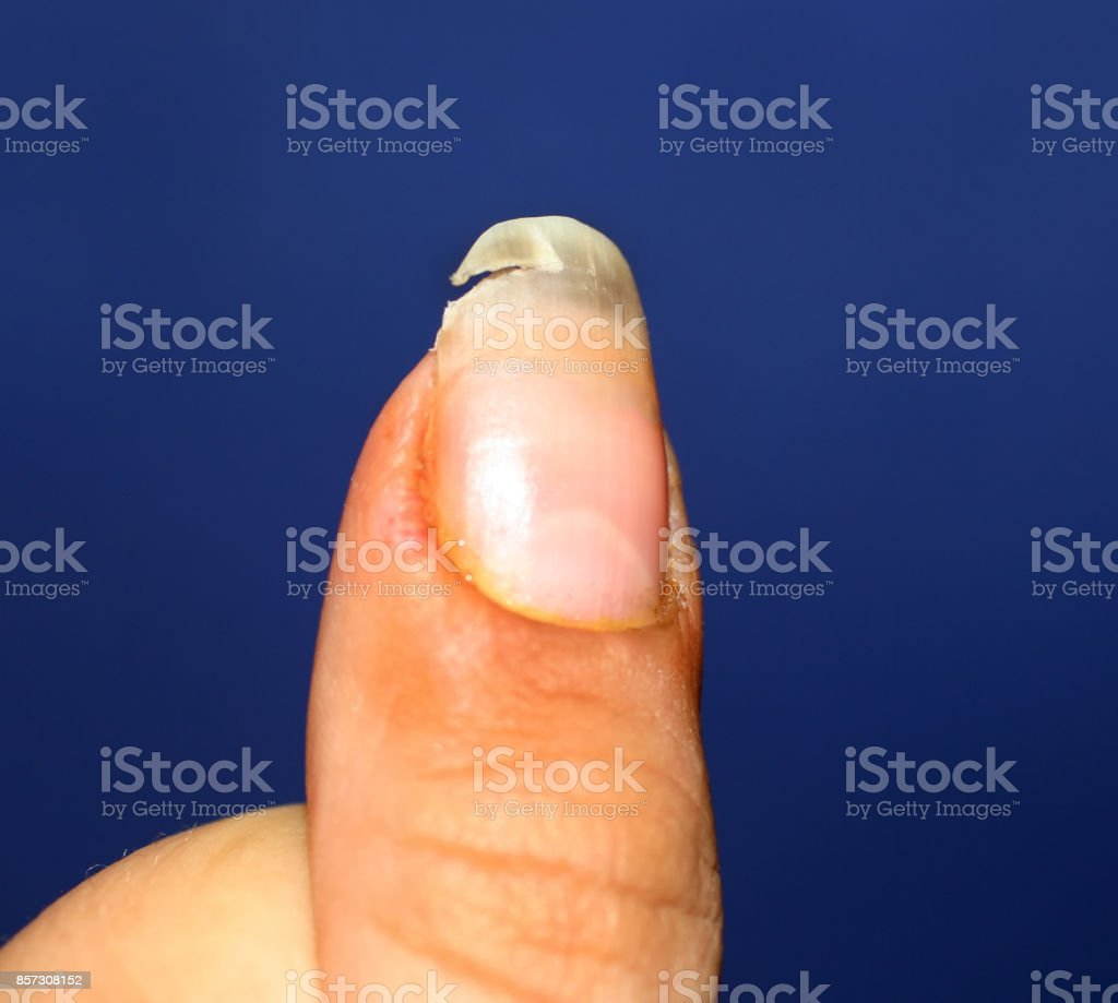 A Broken Nail Lack Of Vitamins And Calcium In The Body Stock Photo ...