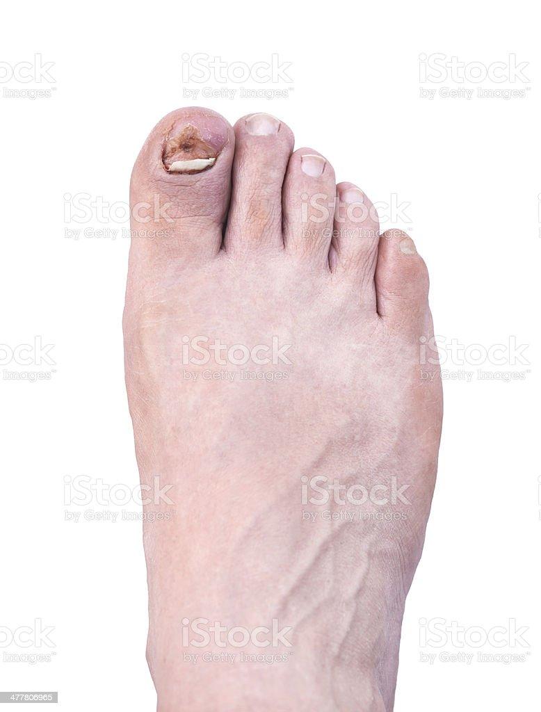 Broken nail royalty-free stock photo