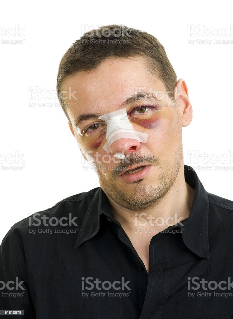 broken nose and black eyes post operation stock photo