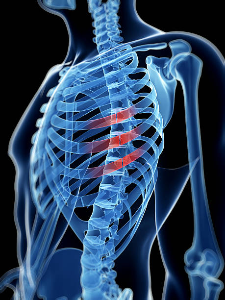 broken ribs medical illustration of broken ribs human rib cage stock pictures, royalty-free photos & images