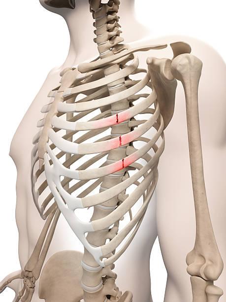 broken ribs stock photo