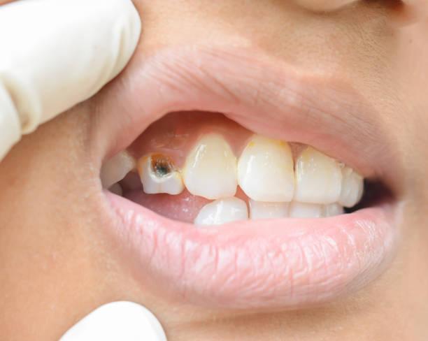 Broken teeth in children stock photo