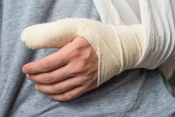 Broken thumb stock photo