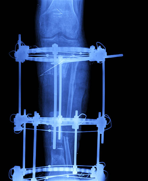 Broken tibia and fibula Xray Broken tibia and fibula Xray affix stock pictures, royalty-free photos & images
