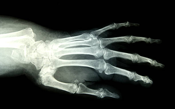 Broken wrist hand xray stock photo