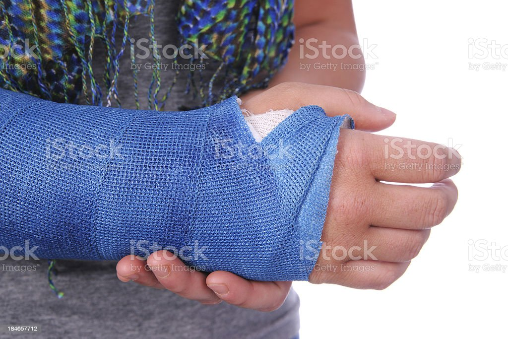 Broken Wrist stock photo
