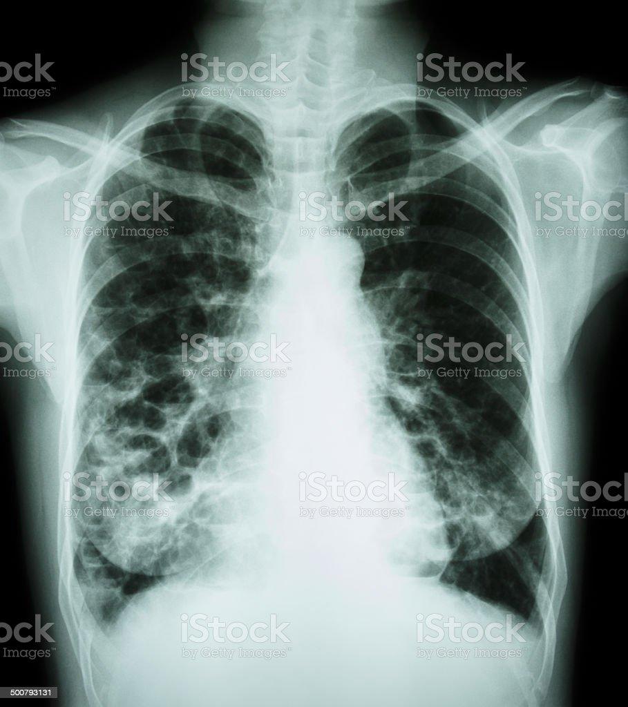 bronchiectasis – Foto