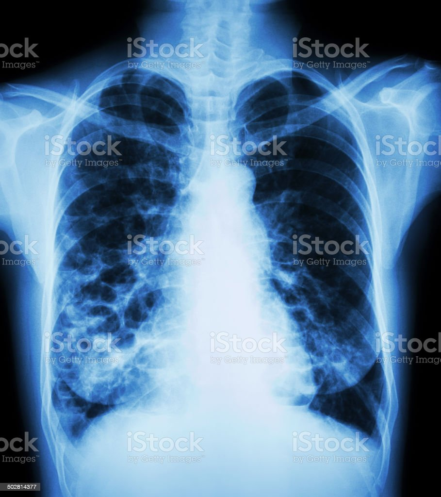 bronchiectasis stock photo