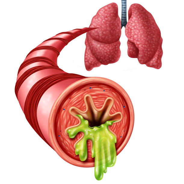 Bronchitis Anatomy Concept Bronchitis anatomy concept as an inflammation of bronchial tube lining with thick mucus secreted as a chest cold as a 3D illustration elements. mucus stock pictures, royalty-free photos & images