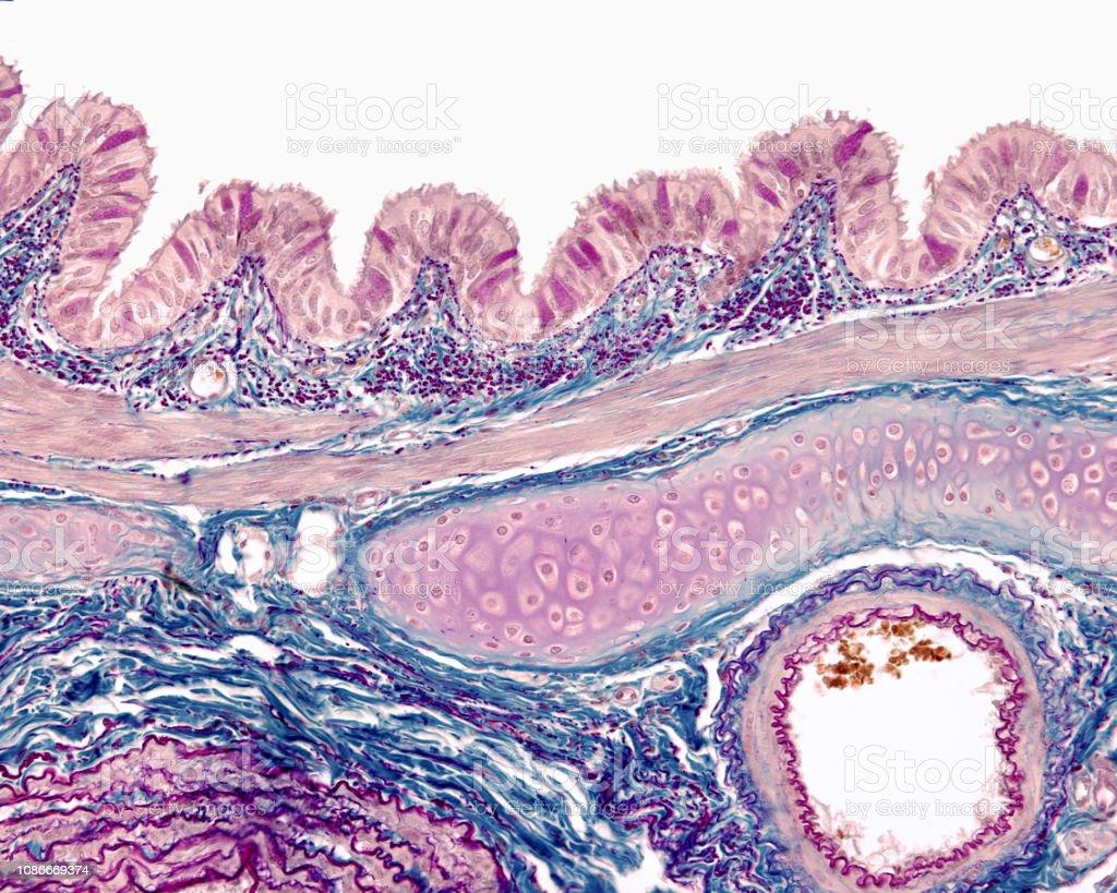 Bronchus wall. Gallego-Cajal method stock photo