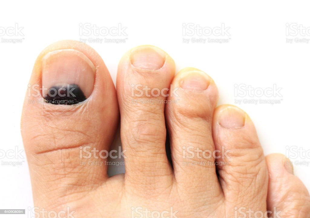 Bruise At The Big Toe Nail Stock Photo & More Pictures of Adult | iStock