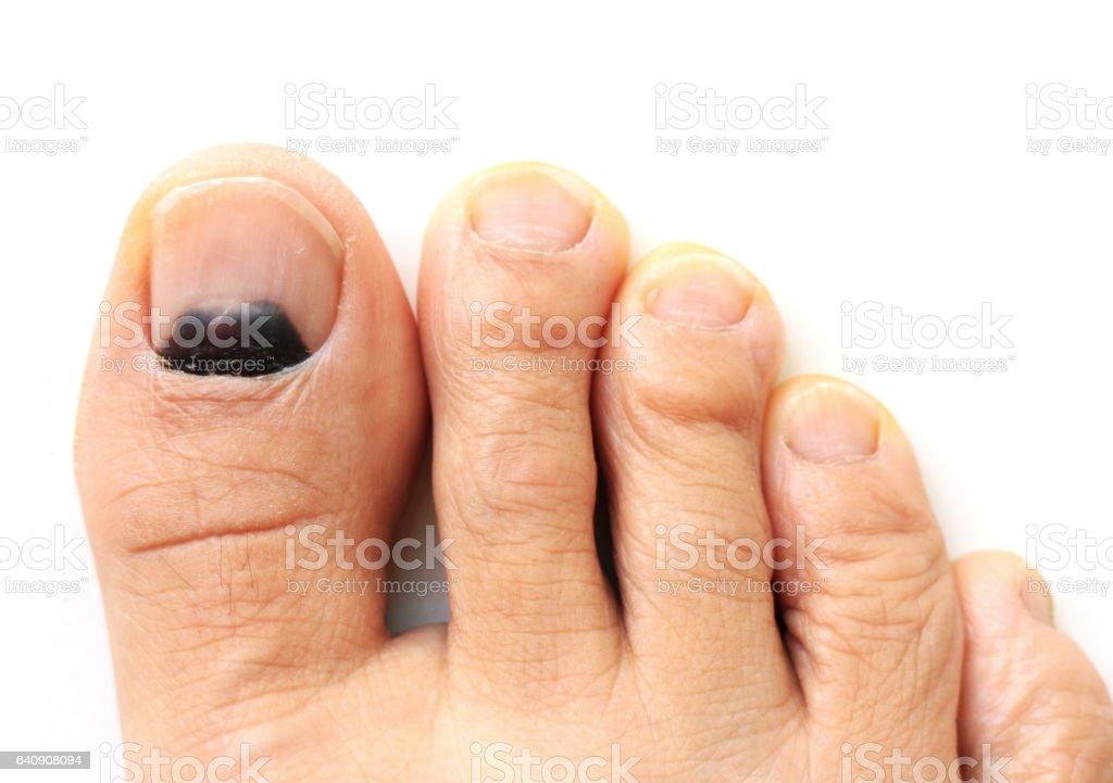 Bruise at the Big Toe Nail stock photo
