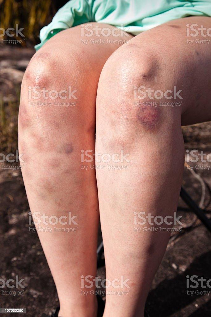 Bruise injuries stock photo