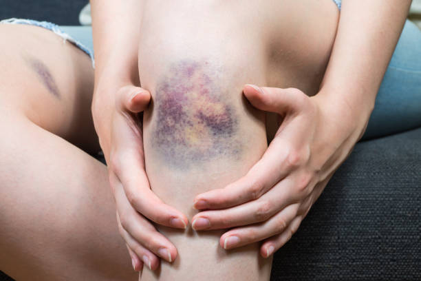 Bruise injury on young woman knee stock photo