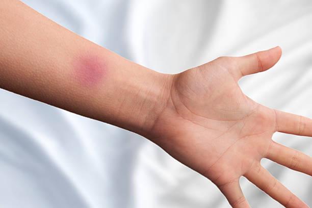 bruise on a hand - blauwe plek stockfoto's en -beelden