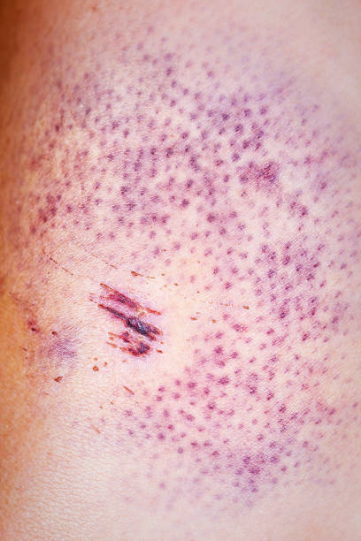Bruise on the skin stock photo