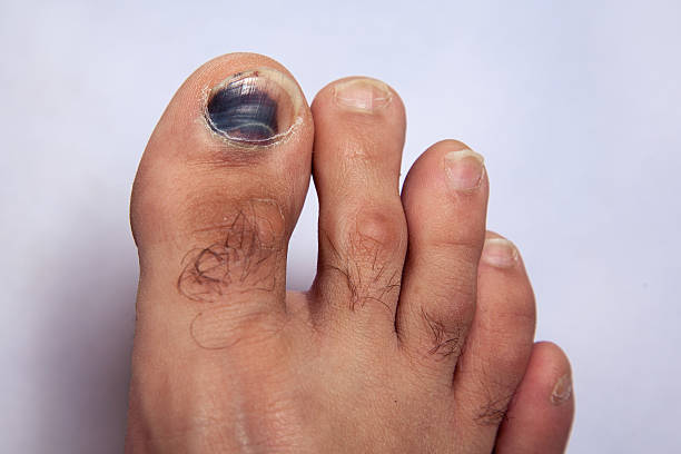Bruise on toe nail on right foot stock photo