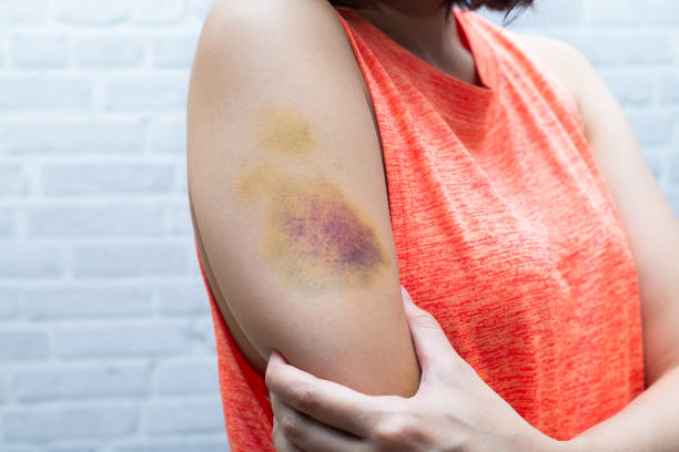 Bruise on woman arm. Injection bruises. Doctor and patient. stock photo