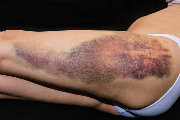 Bruise on wounded woman leg stock photo