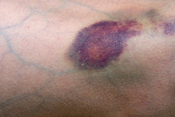 Bruise Bruised leg showing veins. Main focus is on bruise at center of image. davelongmedia stock pictures, royalty-free photos & images