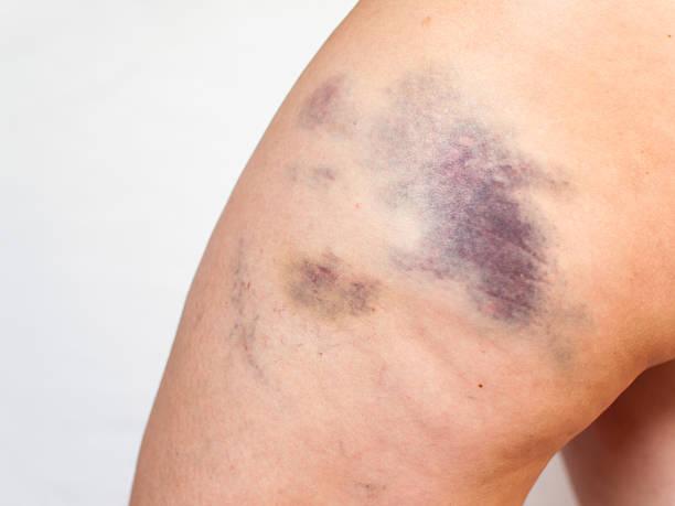 Bruise stock photo