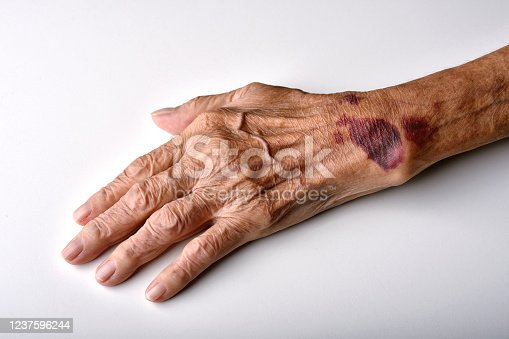 istock Bruise wound on senior people wrist arm skin, Falls injury accident in elderly old man. 1237596244