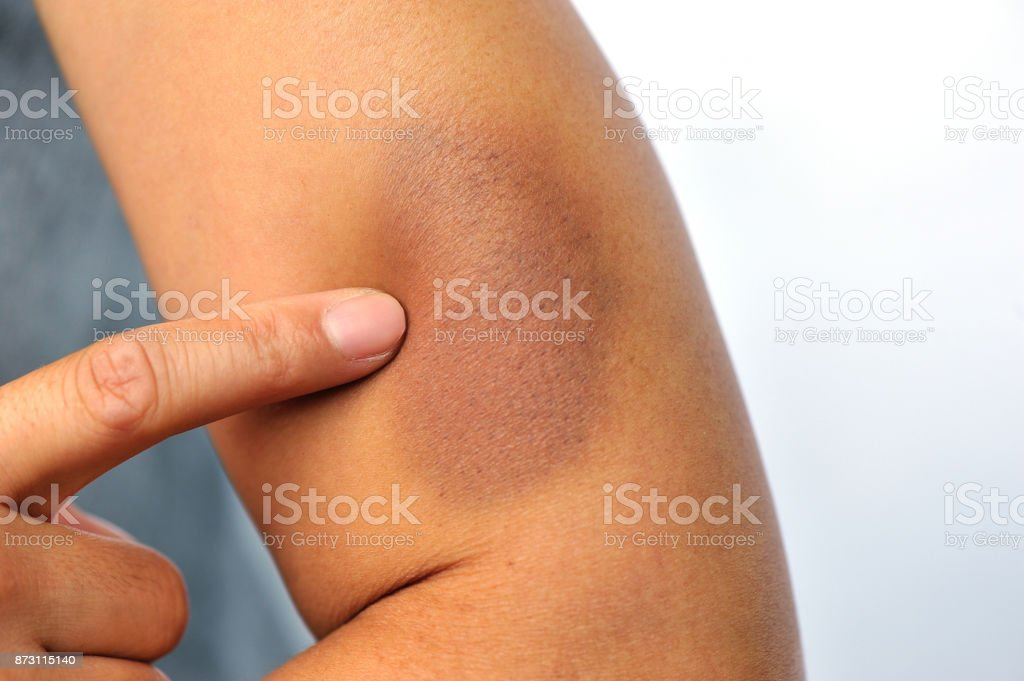 bruised and injured from domestic violence stock photo