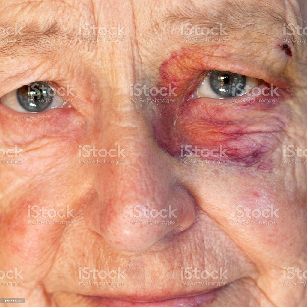 Bruised eye royalty-free stock photo