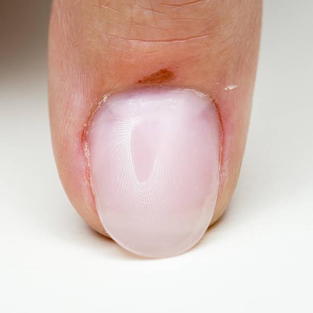 Bruised Hurt Nail Bed stock photo