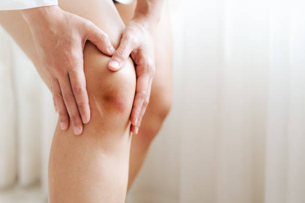 bruised knee of Asia woman, selective focus stock photo